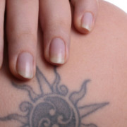 tatoeages verwijderen